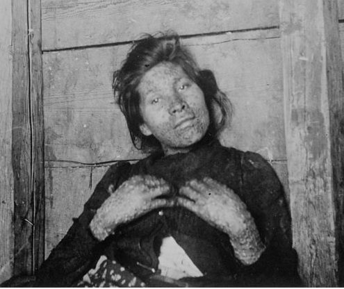 Woman infected with smallpox. Image: Library and Archives Canada: In Quarantine: Life and Death on Grosse Ile.
